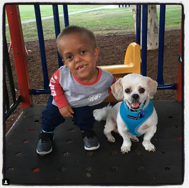 5-Year-Old Boy Was Ashamed Of His Dwarfism… Until They Adopted A Dog Who Has It, Too!