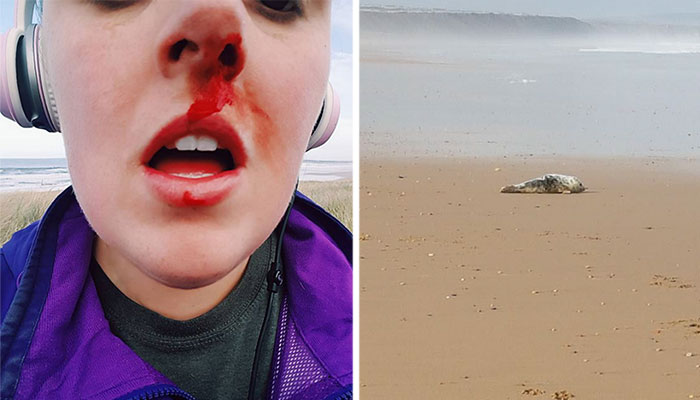 Woman Confronts Teenagers Torturing A Baby Seal, Gets Punched In The Face