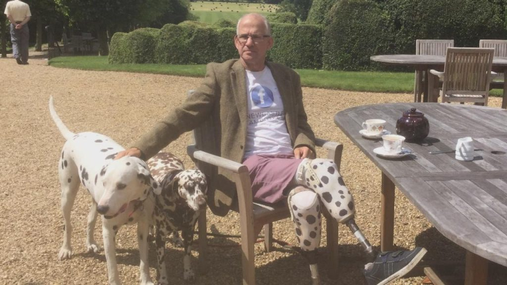 His Dogs Helped Him Through Depression When He Lost His Legs, Then He Got Prosthetics To Match Them